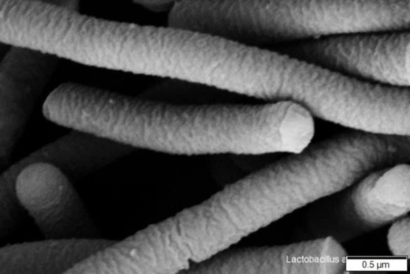 Lactobacillus acidophilus SEM