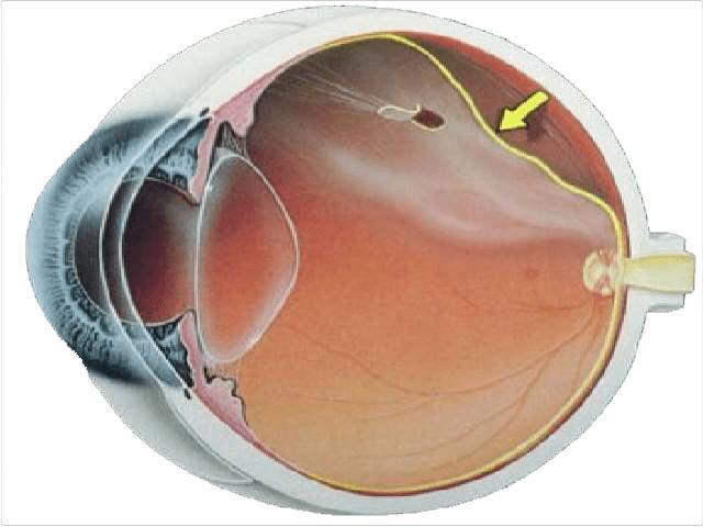 Esquema de un desprendimiento de retina