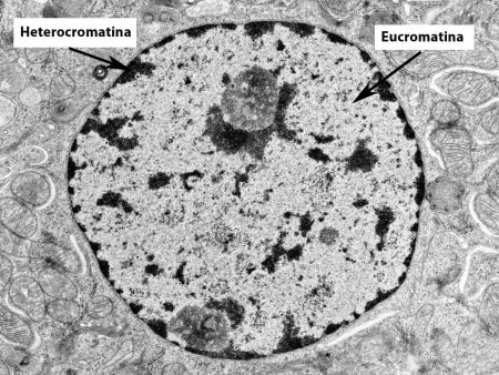 Núcleo al microscopio con eucromatina y heterocromatina