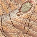 Túnel en la piel de Sarcoptes scabiei