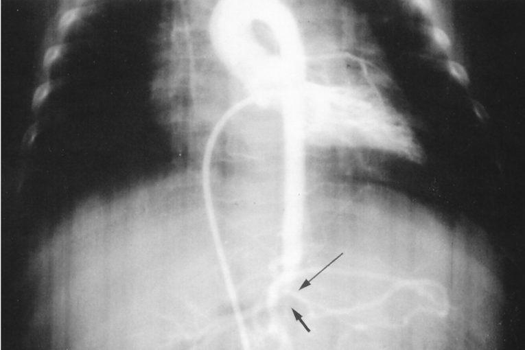 Aortografía coartación aórtica abdominal