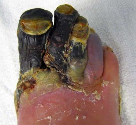 Gangrena en los dedos de los pies