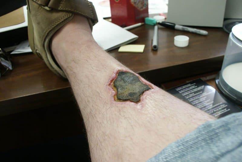 Herida necrótica en la pierna