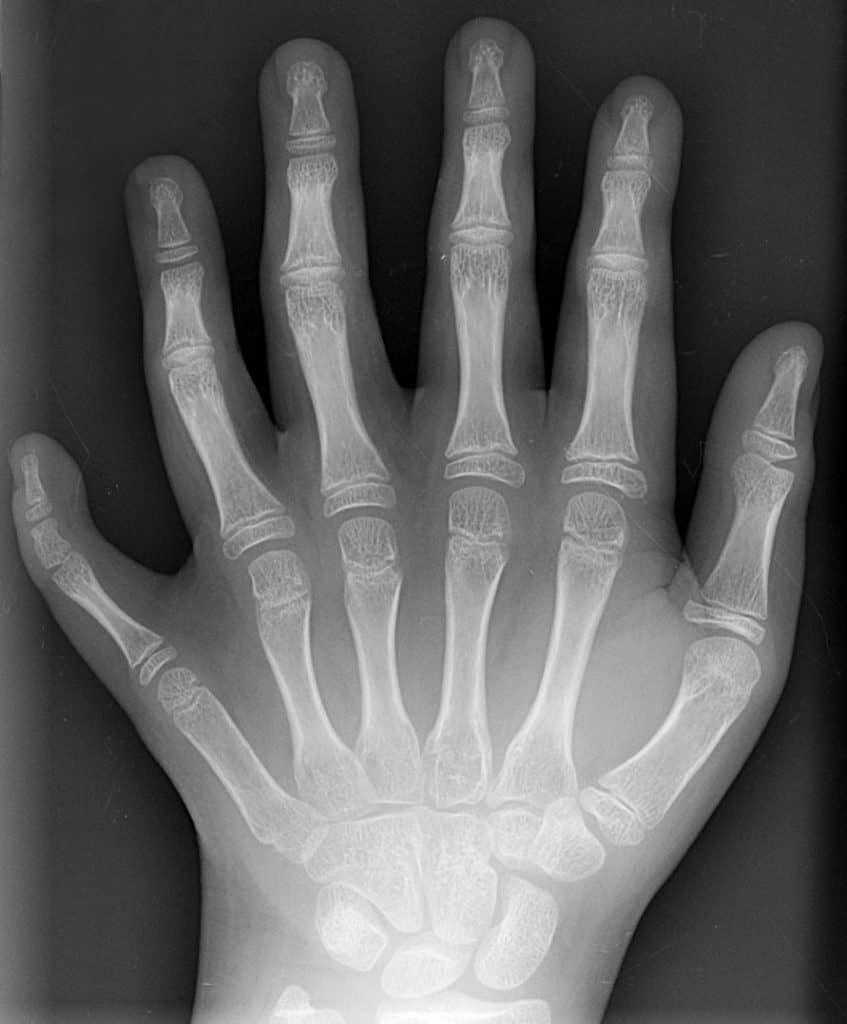 Polidactilia (radiografía)