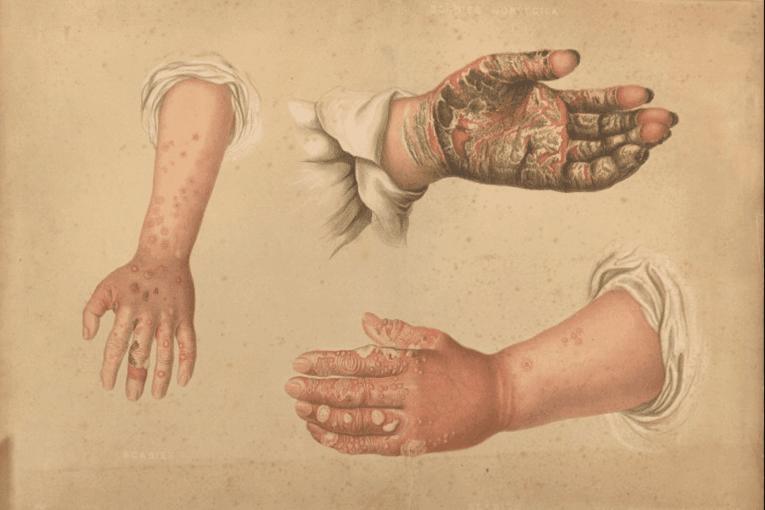 Tipos de sarna en manos