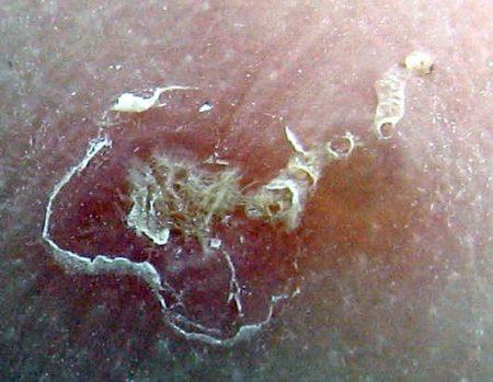Lesiones por sarna ampliada