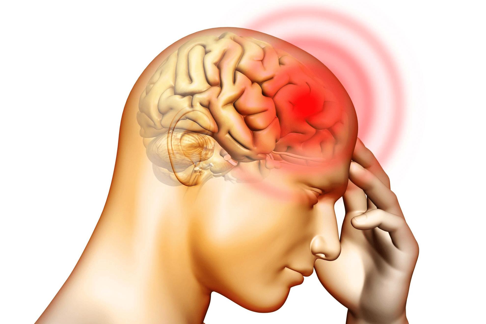 Ilustración que muestra el dolor generado por meningitis