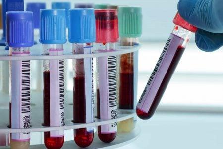 Muestras para análisis de sangre
