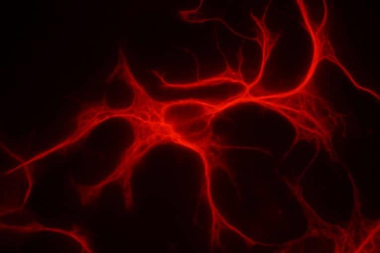 Astrocito (tinción GFAP)