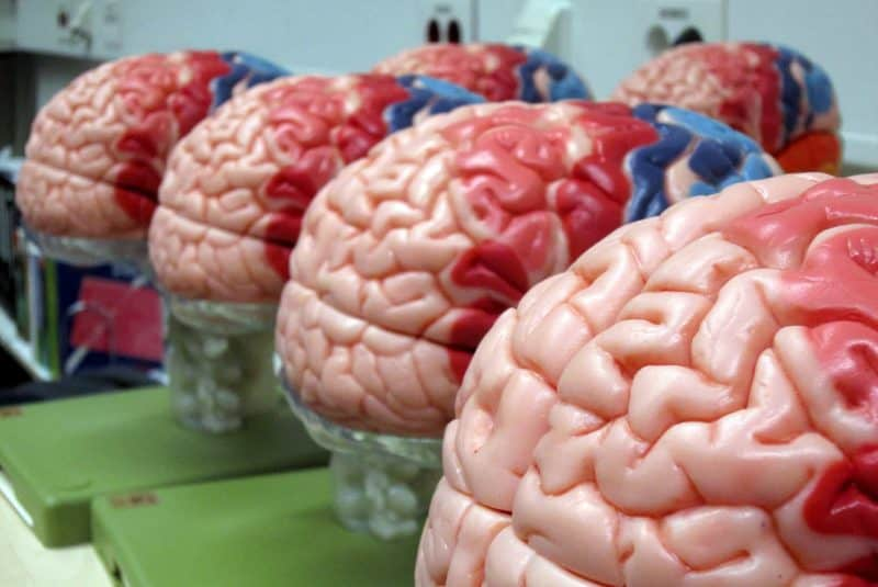 Cerebros de plástico