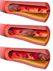 Embolia por trombo