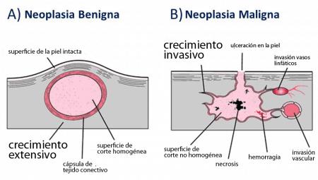 Tumor benigno y maligno en la piel