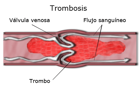 Esquema de trombosis