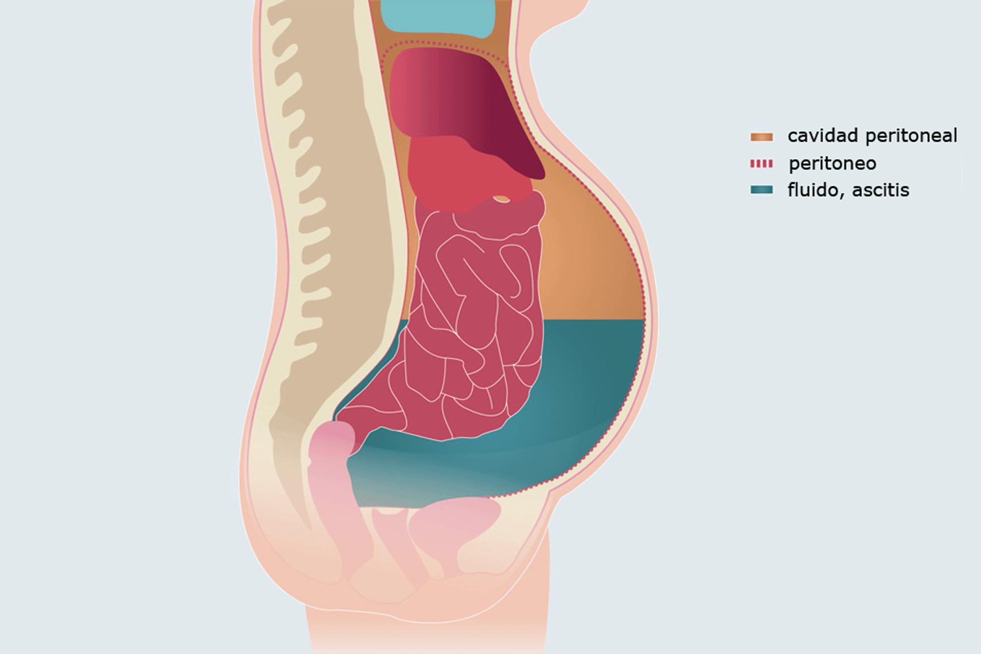 Qué es la ascitis? – Curiosoando