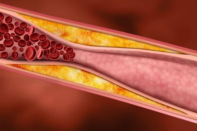 El colesterol malo forma placas de ateroma