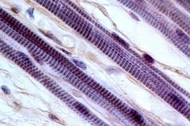 Micrografía de fibra muscular estriada