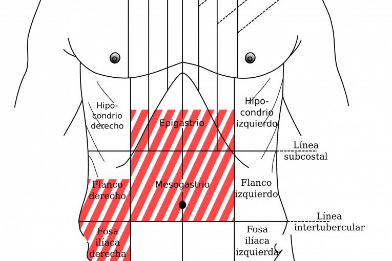Zonas de dolor de la apendicitis