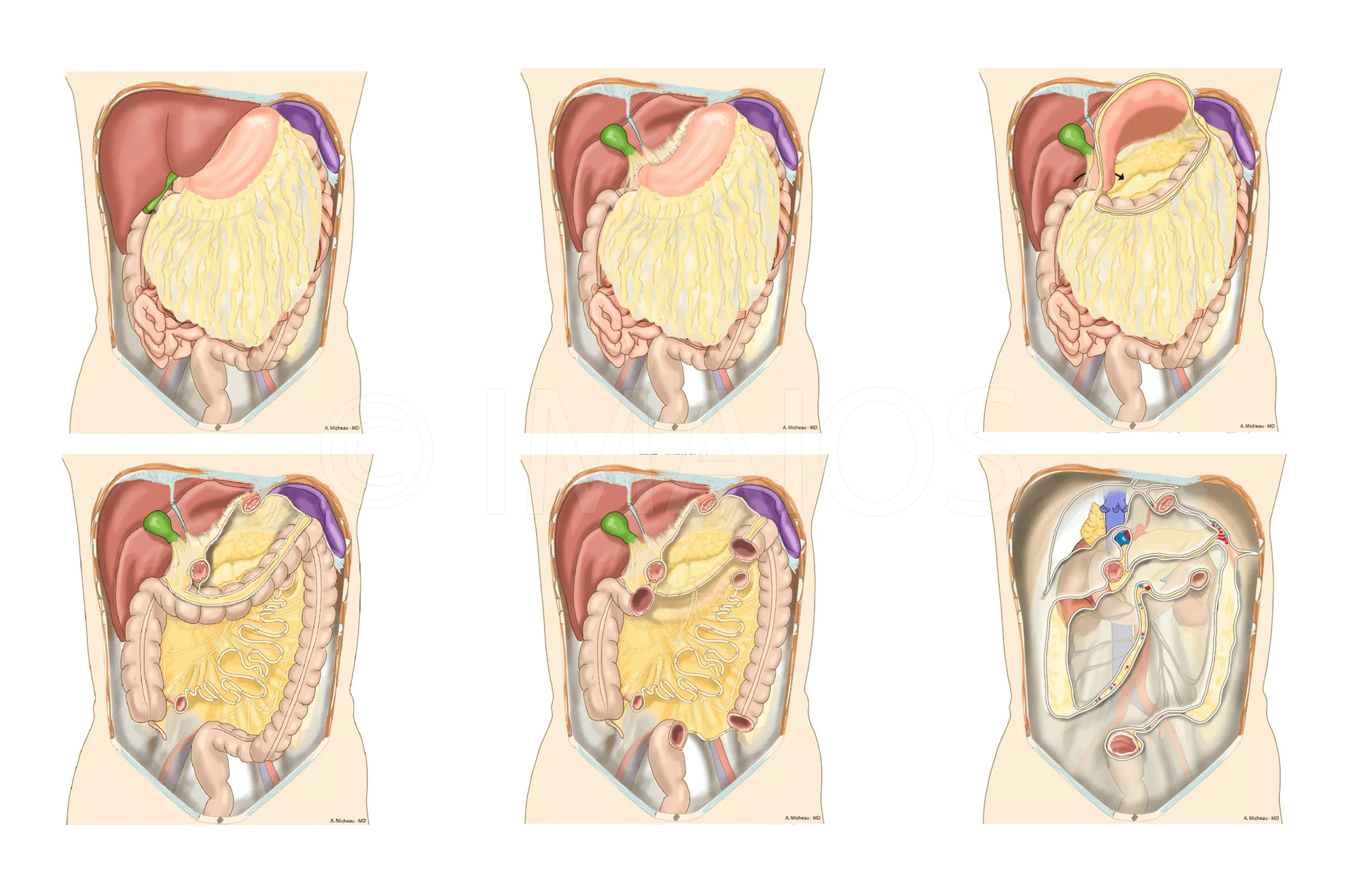 Qué es la cavidad peritoneal? – Curiosoando