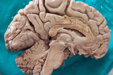 Cerebro humano diseccionado