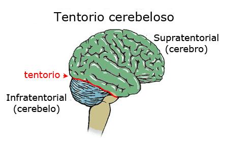 Tienda del cerebelo o tentorio cerebeloso