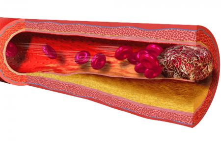 Un vaso sanguíneo bloqueado