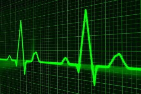 Cardiograma (ilustración)