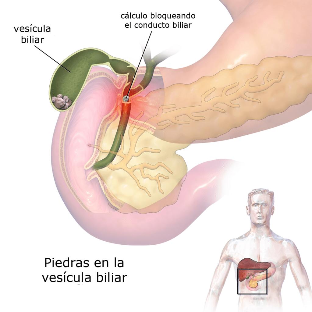 Piedras en la vesícula biliar (diagrama)