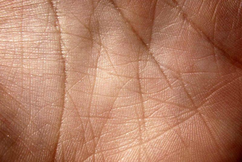 Piel de la palma de la mano