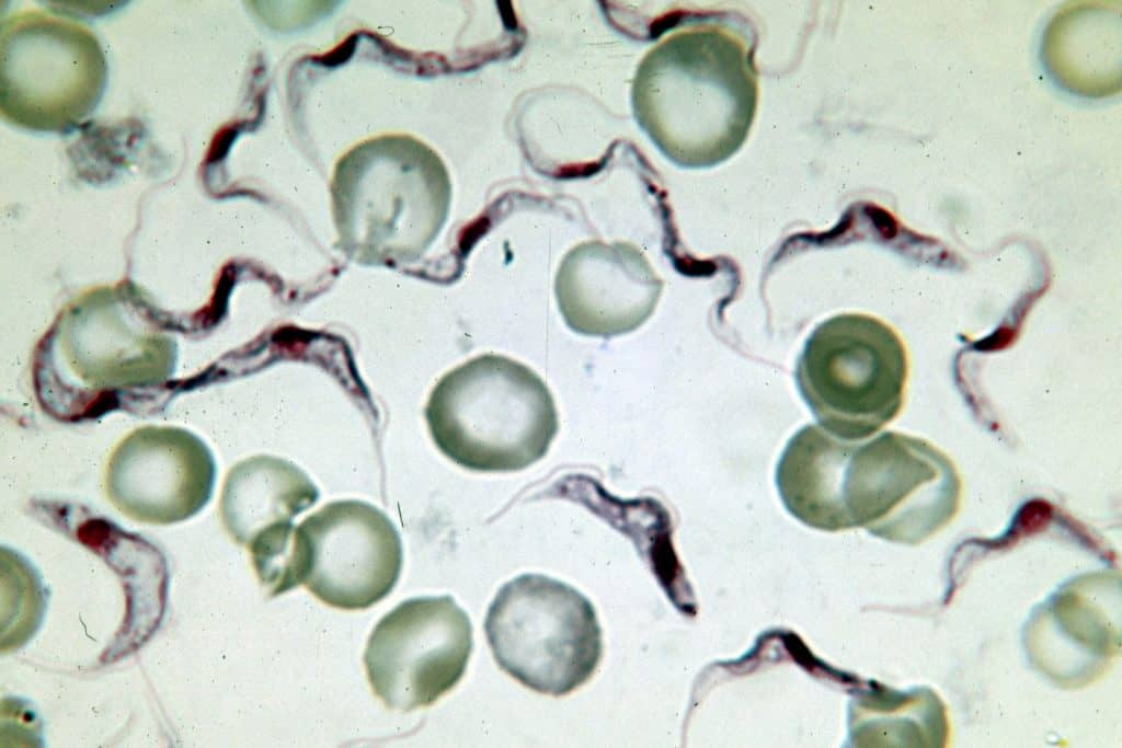 Trypanosoma brucei en una muestra de sangre