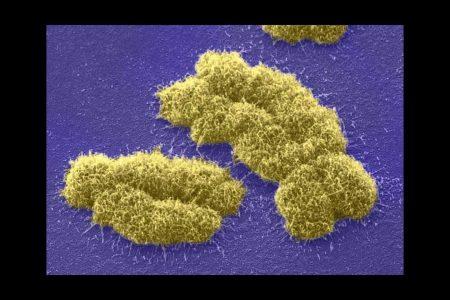 Cromosomas XY