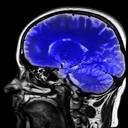Ilustración cerebro humano