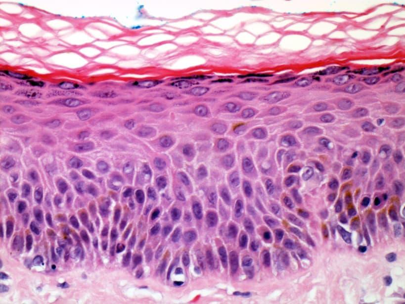 Piel teñida con hematoxilina y eosina