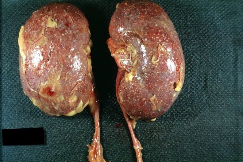 Pielonefritis aguda con abscesos purulentos