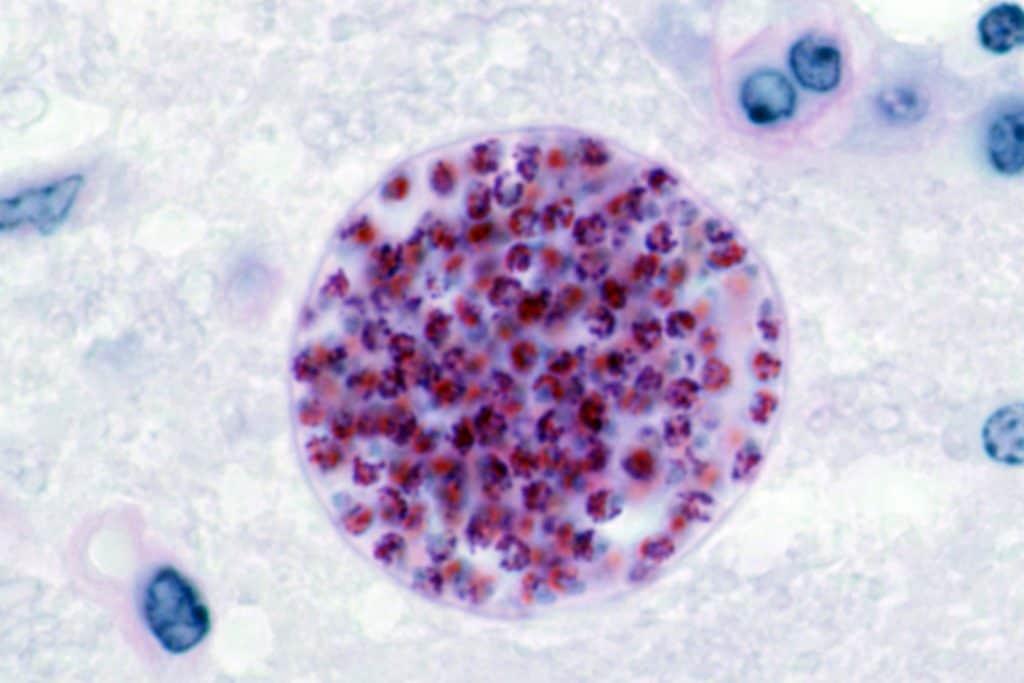 Toxoplasma gondii (quiste)