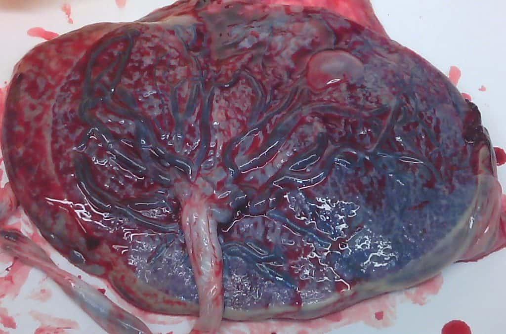 Placenta humana real
