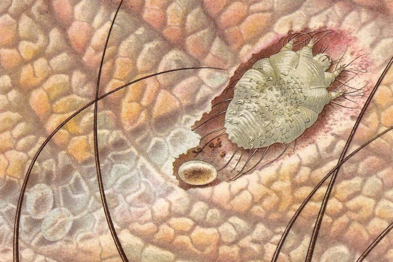 Sarna sarcóptica (ilustración)
