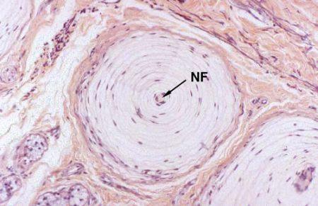 Corpúsculo lamelar (microscopio)