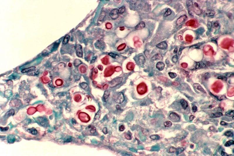 Criptococosis de pulmón en un paciente con SIDA