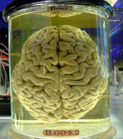 Cerebro humano en formol