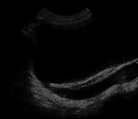 Escáner de ultrasonido en reflujo vesicoureteral primario