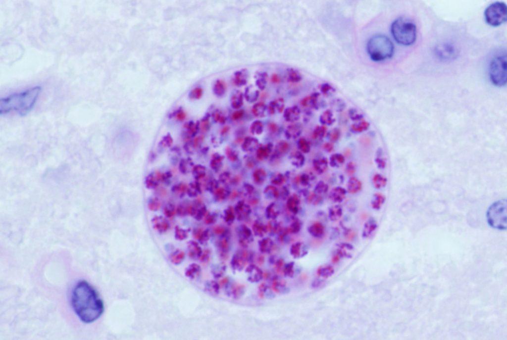 Quiste de Toxoplasma gondii en cerebro de ratón