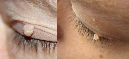 Acrocordón y verruga filiforme