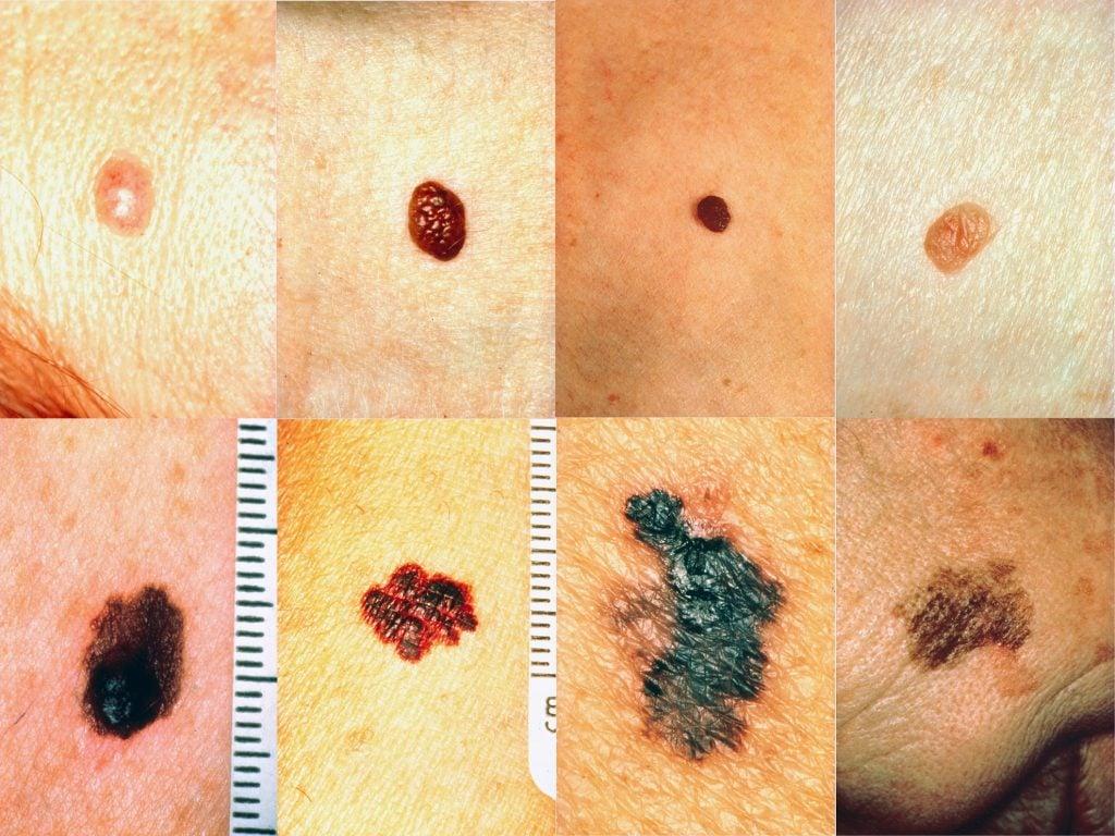Lunares y melanomas