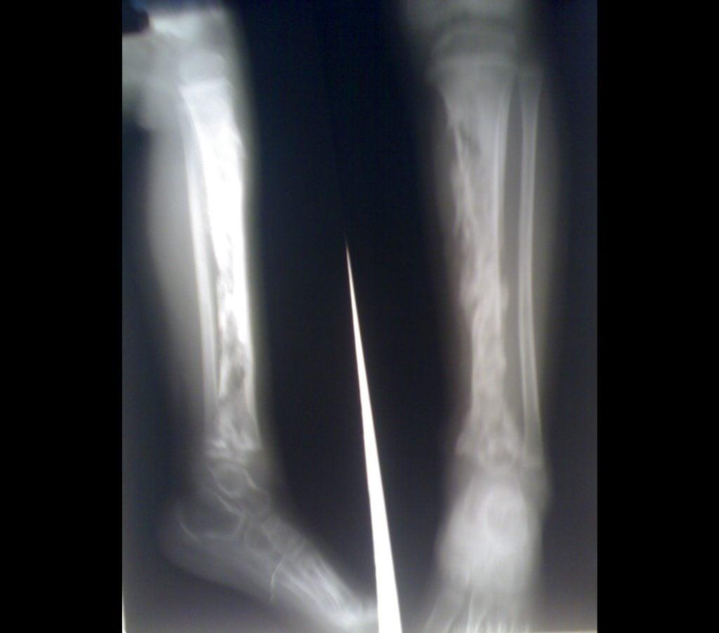 Osteomielitis en la tibia de un niño