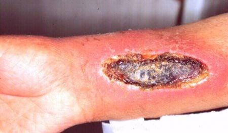 Herida por extravasación intravenosa