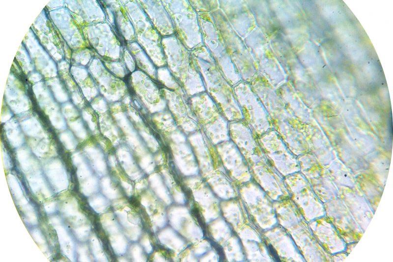 Células vegetales 400x (Elodea nuttallii)