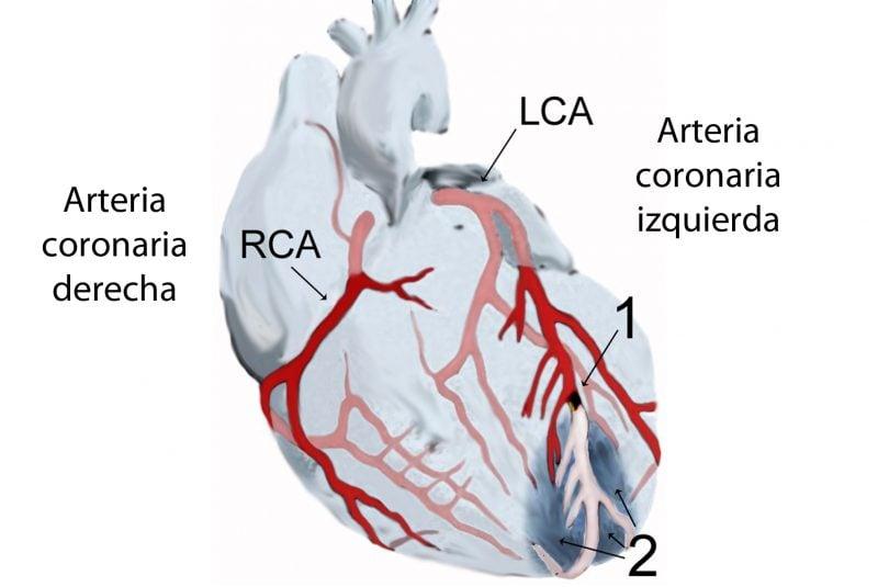 Esquema de un infarto de miocardio anterior