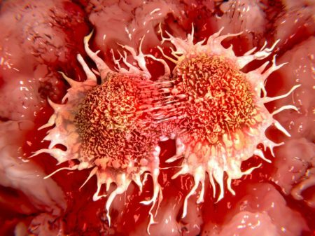 Células cancerosas en división