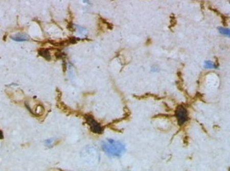 Microglía en reposo