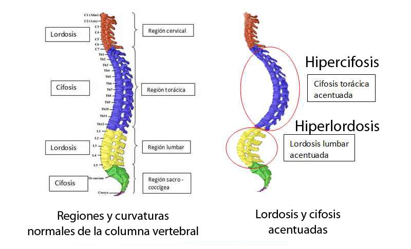 Lordosis cervical tratamiento natural